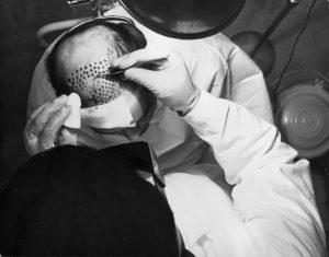 History of Hair Transplantation